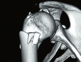 Fractura de Cuello Quirurgico