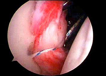 Reparacion Artroscopica