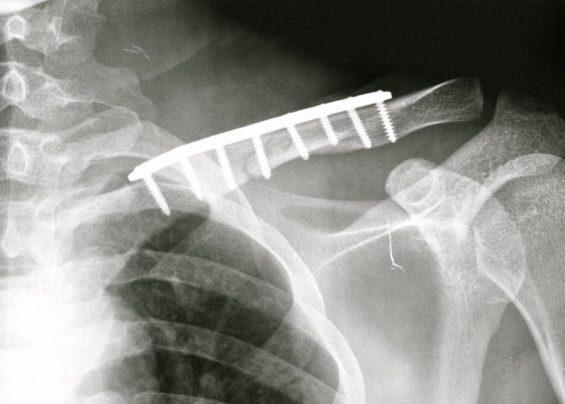 Tratamiento quirúrgico mediante fijación interna
