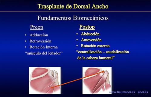 dorsal ancho